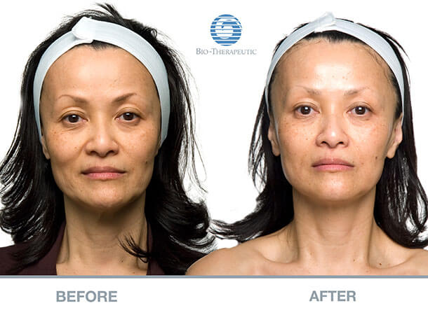 Microcurrent Facials Before and After
